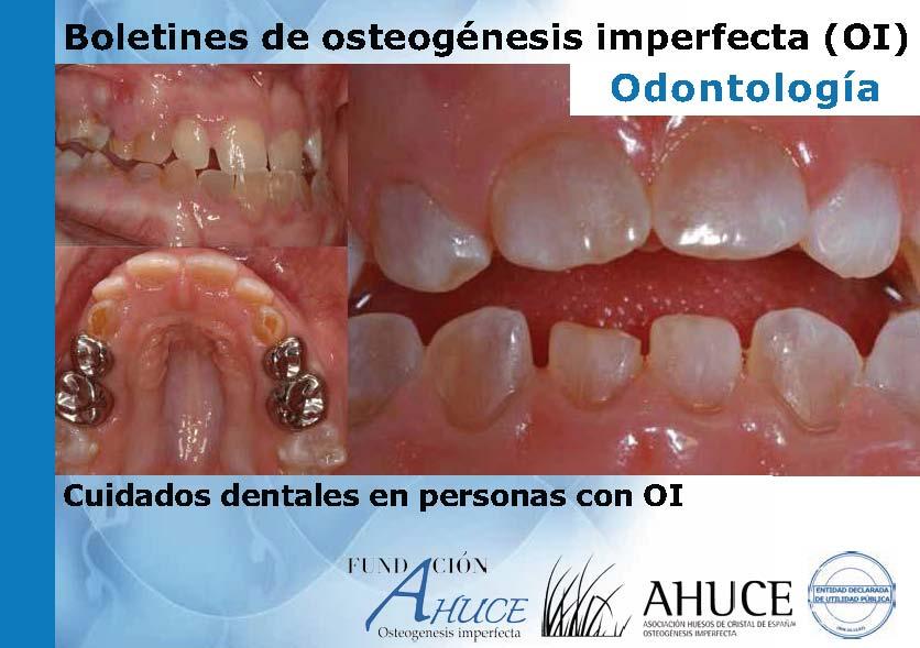Odontología OI